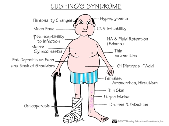 cushings-syndrome